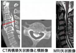 後縦靭帯骨化症の画像