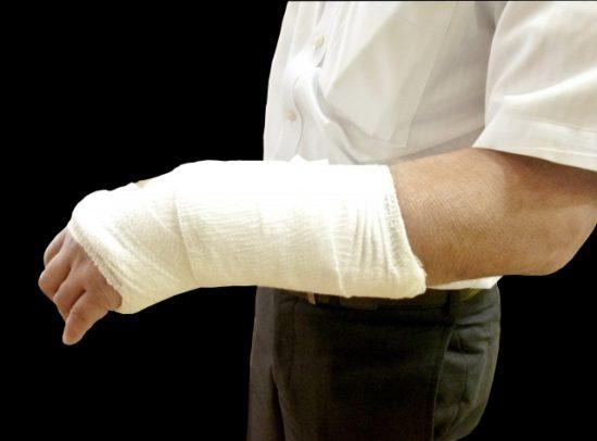 手関節骨折後のギプス固定