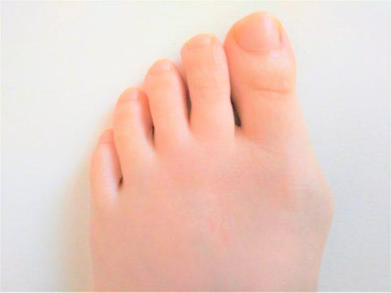 外反母趾の女性