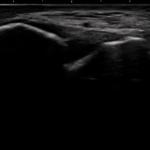 前距腓靭帯のエコー写真