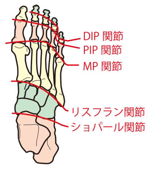 リスフラン関節靭帯損傷 | 横山医院ブログ